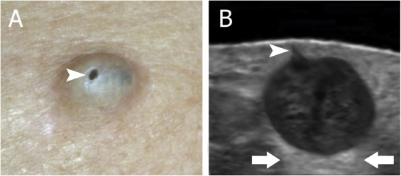 Overview of epidermoid cyst - ScienceDirect