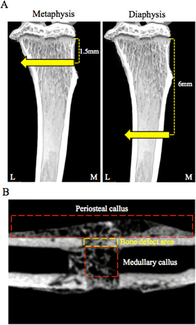decisive differences in the bone repair processes of the metaphysis