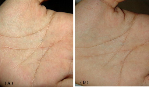Aquagenic Wrinkling of the Palms, two new cases from Saudi Arabia