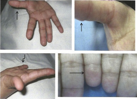A rare presentation of subcutaneous granuloma annulare in an adult