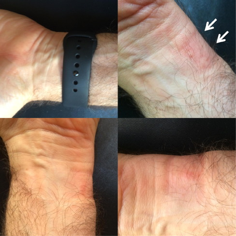 7a728c387 Contact urticaria caused by the Apple Watch – A case report ...