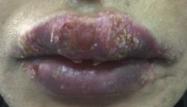 Cosmetic lip tattoo sequelae: A case report and review of literature ...