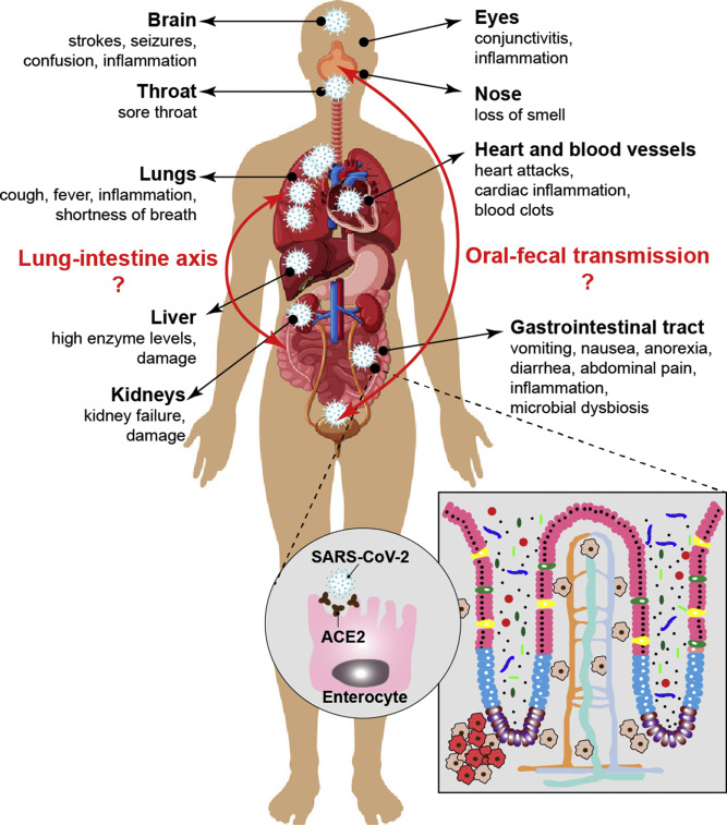 Gastrointestinal Symptoms Pathophysiology And Treatment In Covid 19 Sciencedirect