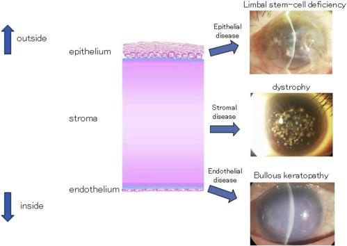 Corneal regenerative medicine - ScienceDirect