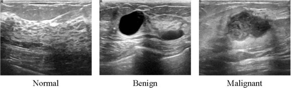 Dataset Of Breast Ultrasound Images Sciencedirect