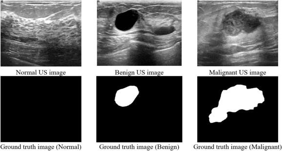 Dataset Of Breast Ultrasound Images Sciencedirect
