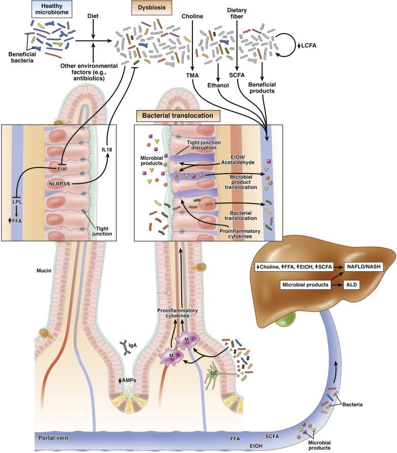 dysbiosis liver