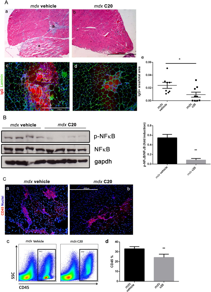 Pharmacological Inhibition of PKCθ Counteracts Muscle