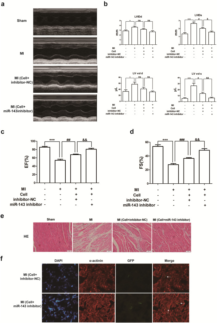 By Targeting Atg7 Microrna 143 Mediates Oxidative Stress Induced