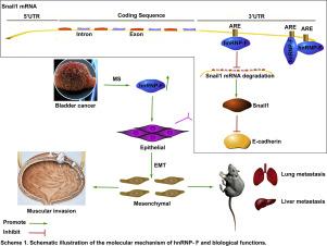 HnRNP-F regulates EMT in bladder cancer by mediating the