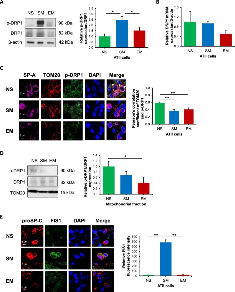 Mitochondrial dysfunction in human primary alveolar type II cells in