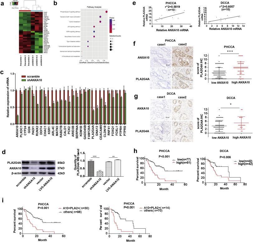 Annexin10 promotes extrahepatic cholangiocarcinoma