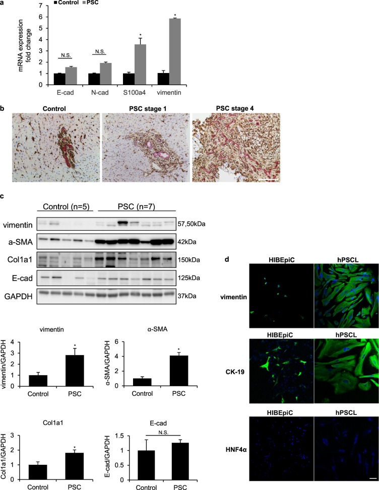 Knockdown of vimentin reduces mesenchymal phenotype of