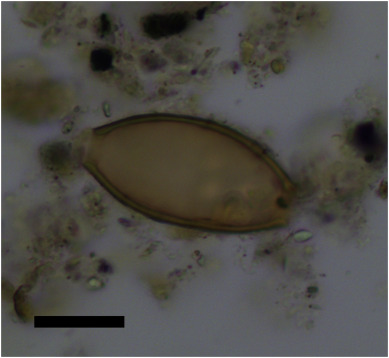 Infectious disease in the ancient Aegean: Intestinal parasitic worms