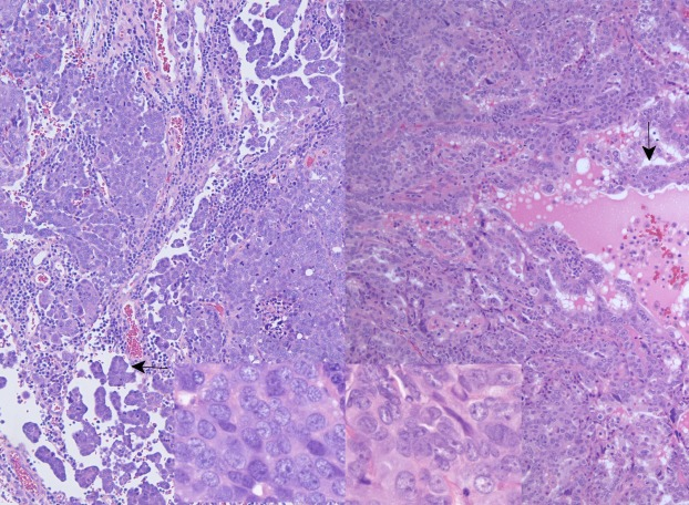 Metastatic Brain Disease In Early Stage Ovarian Cancer A Case Report Sciencedirect