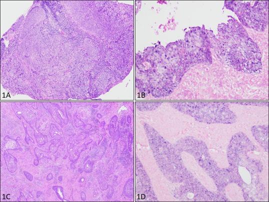 virusul papiloma uterin