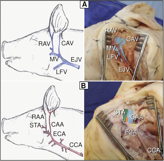 artery diagram pork wiring diagram online Abdominal Arteries Diagram artery diagram pork wiring diagram data heart diagram labeled artery diagram pork