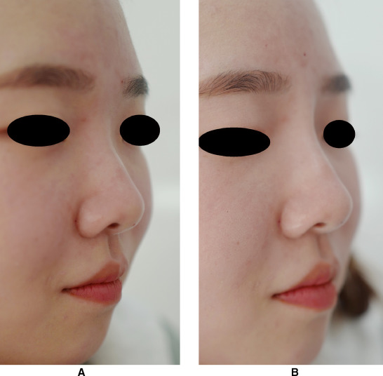 Filler rhinoplasty based on anatomy: The dual plane technique