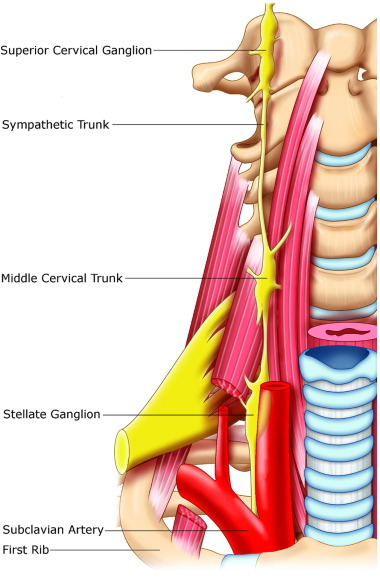 Horners Syndrome In Traumatic First Rib Fracture Without Carotid
