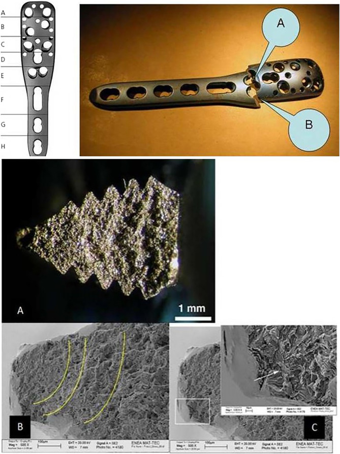 Early failure of a locked titanium plate in a proximal