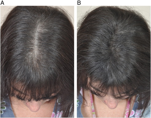 Hair Camouflage A Comprehensive Review Sciencedirect