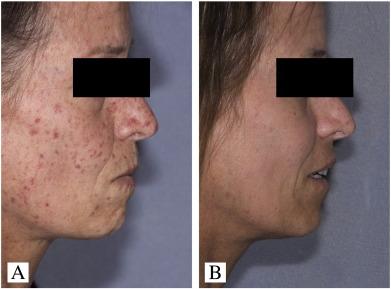 Laser treatment of medical skin disease in women - ScienceDirect