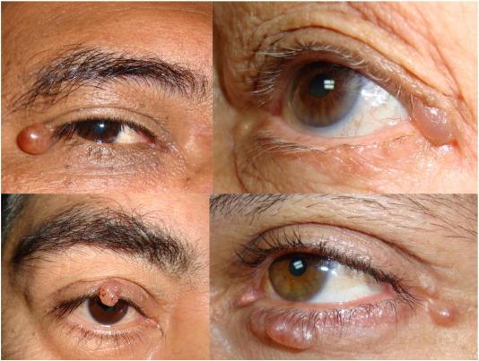 Periocular dermatoses - ScienceDirect
