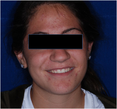 A review of diagnosis and treatment of acne in adult female