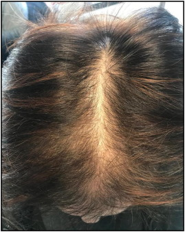 Female Pattern Hair Loss A Clinical Pathophysiologic And Therapeutic Review Sciencedirect