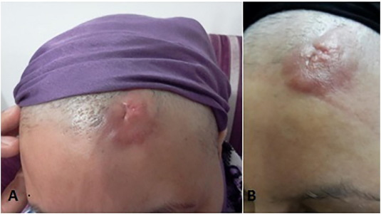 Scalp Metastasis From Occult Primary Breast Carcinoma A Case Report And Review Of The Literature Sciencedirect