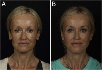 An approach to structural facial rejuvenation with fillers
