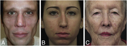 An approach to structural facial rejuvenation with fillers in women