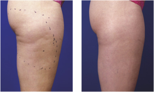 Treatment For Cellulite Sciencedirect