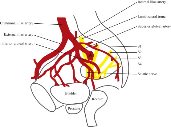 An internal iliac artery aneurysm causing sudden buttock ischemia ...