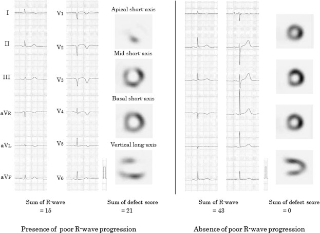 poor r wave progression and myocardial infarct size after anterior