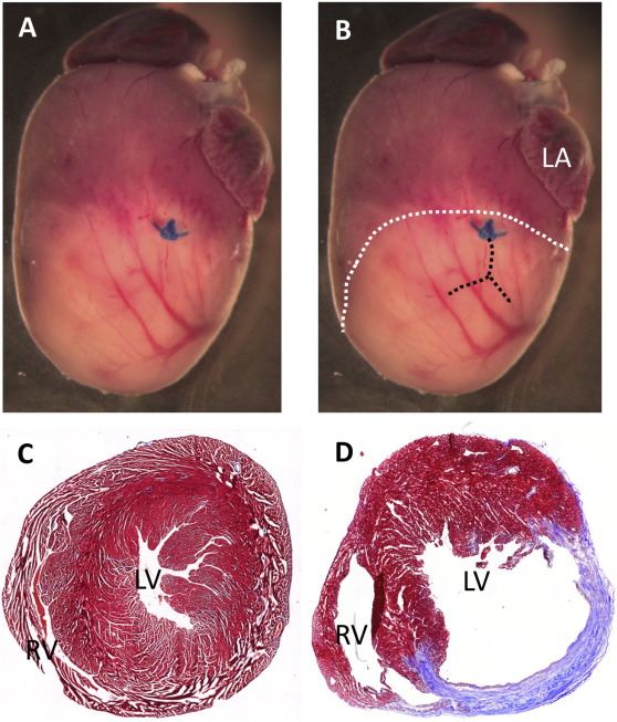 Using MRI to predict future adverse cardiac remodelling in a male ...