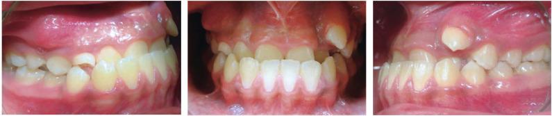 Tratamiento De Una Clase Iii Esqueletica Con Transposicion Dental Utilizando Un Enfoque No Quirurgico Presentacion De Un Caso Sciencedirect