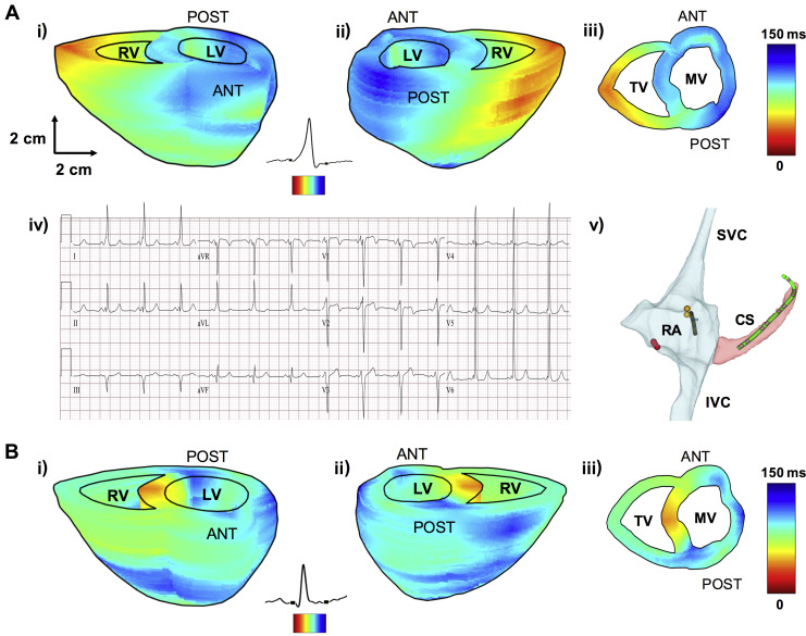 Localization of Accessory Pathways in Pediatric Patients