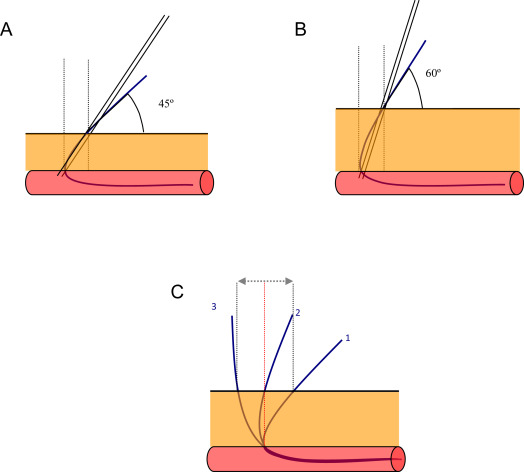 Reverse Retrograde Approach: An Alternative Method for Ipsilateral ...