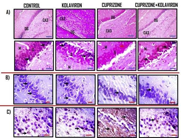 Cuprizone toxicity and Garcinia kola biflavonoid complex