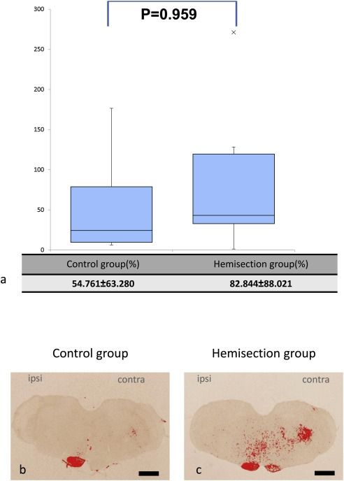 Mechanism of forelimb motor function restoration in rats with