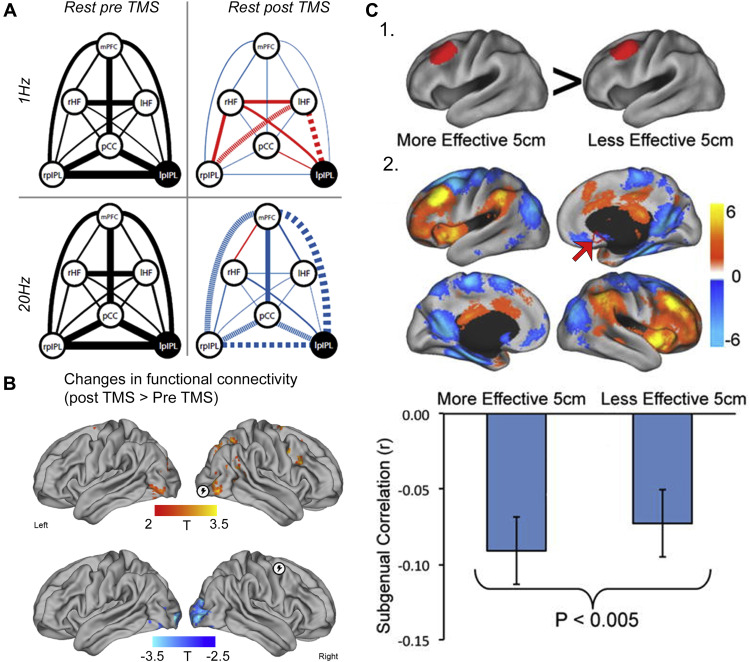 Personalized Transcranial Magnetic Stimulation in Psychiatry