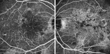Intravenous Fluorescein Angiography IVFA