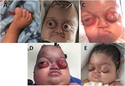 Ophthalmic Considerations In Patients With Pfeiffer Syndrome