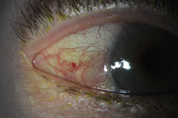 conjunctival papilloma interferon)