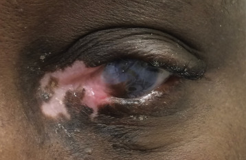 A case of hypertrophic herpes simplex virus affecting the