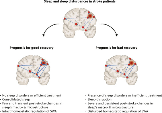 The role of sleep in recovery following ischemic stroke: A review of