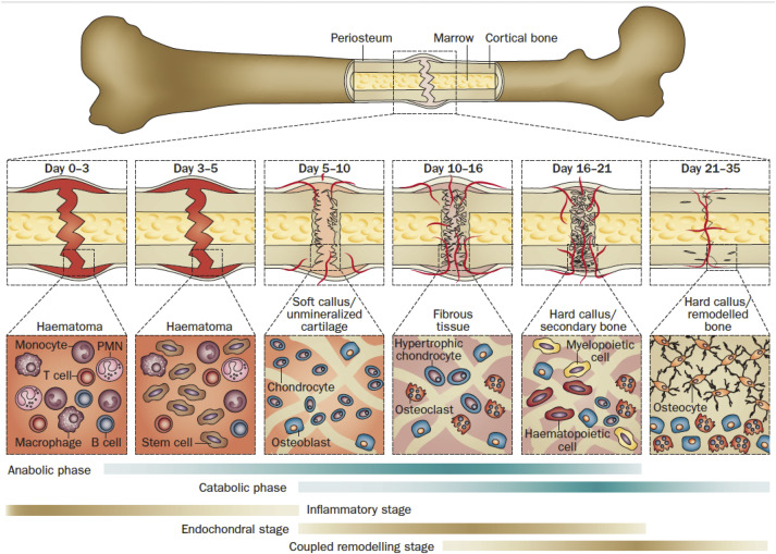 Bone grafts and biomaterials substitutes for bone defect