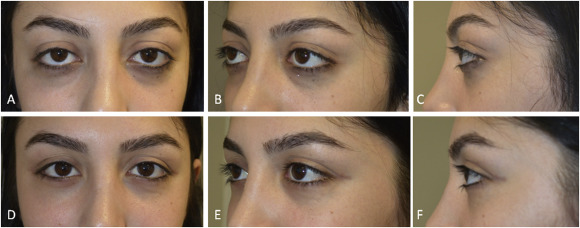Combined orbital decompression and lower eyelid retraction