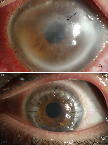 Acanthamoeba keratitis – Clinical signs, differential